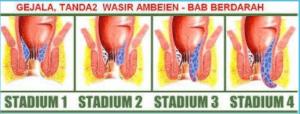 Cara Mengobati Ambeien Stadium 4